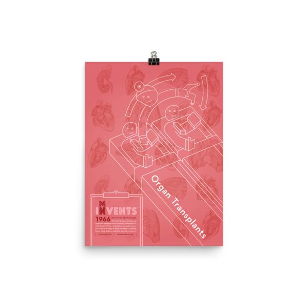 Organ Transplants Poster